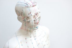 acupuncture, cerebral palsy