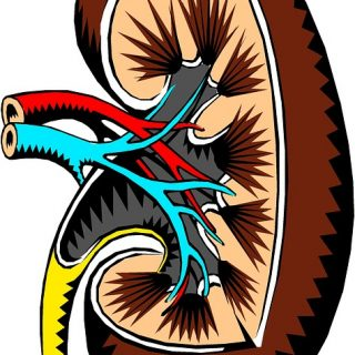 banana, kidney stones, kidney