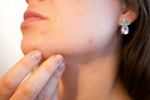acne, moisterizer