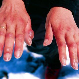 Chilblains, hands, swollen joints, frostbite
