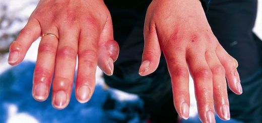 Chilblains, hands, swollen joints, frostbite