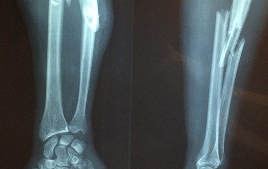 bone, x-ray, fracture