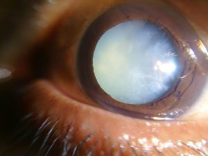 cataract, eye