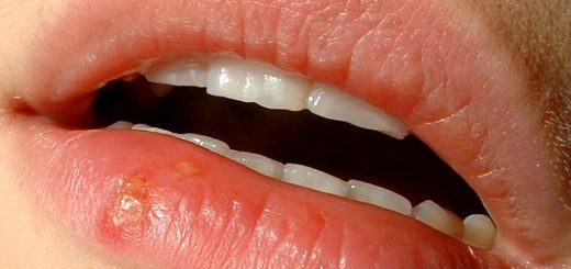 Mouth Archives Home Remedies For All Kinds Of Ailments