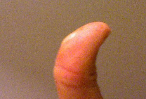 blister, home remedies for blisters