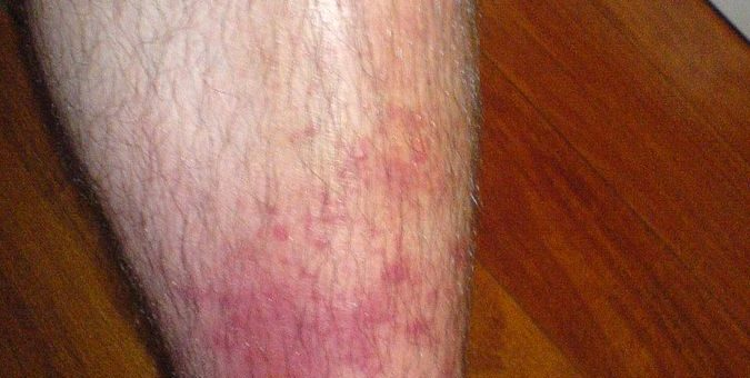 cellulitis, home remedies for cellulitis,