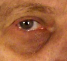 bags under the eyes, dark circles under the eyes