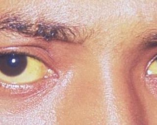 home remedies for jaundice, yellow eyes