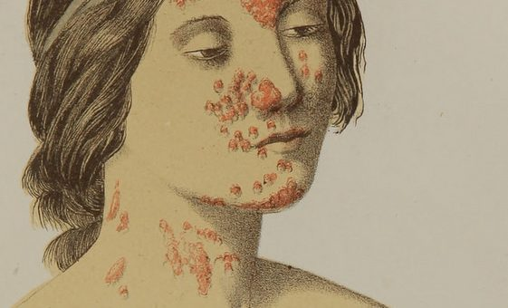 home remedies for syphilis, STD