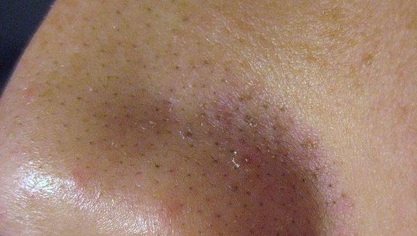 blackheads, acne, nose