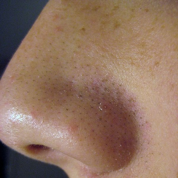 blackheads, acne, nose