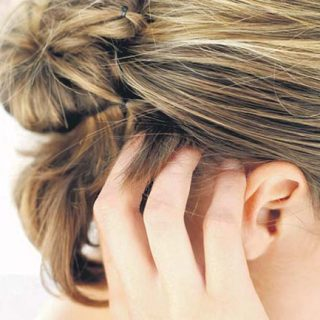 Home Remedies For Hair Dye Allergies